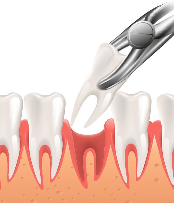 Extractions and Oral Surgery Post Operative