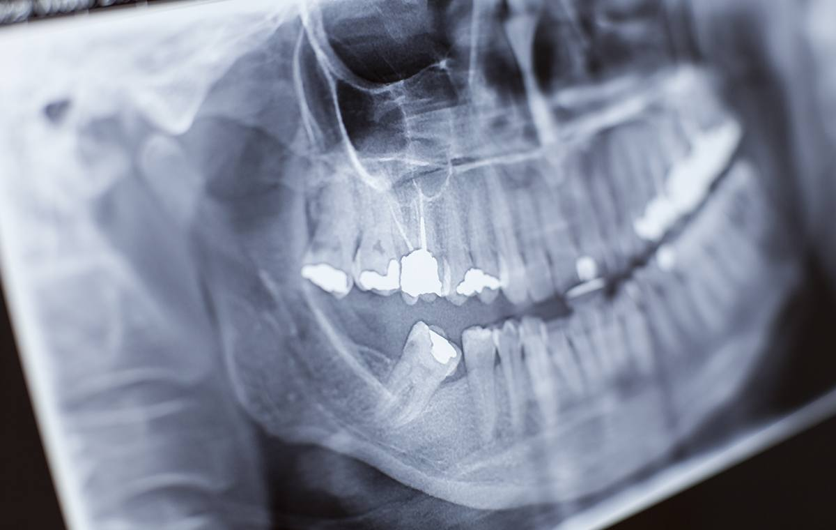 3 Reasons to Get Dental X-Rays