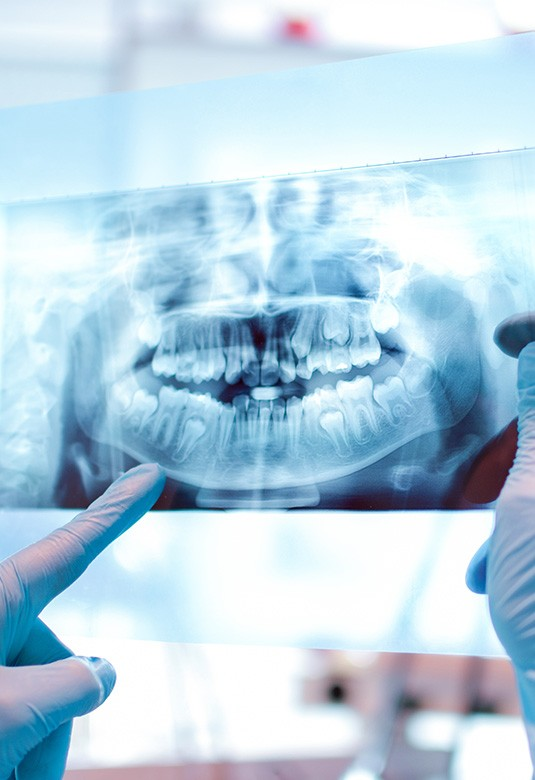 Dental Exams & X-Rays